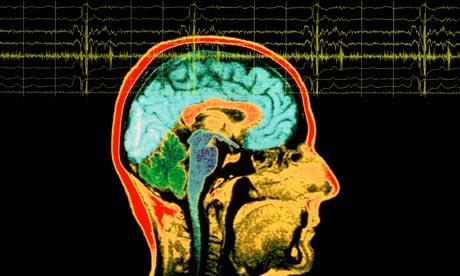 The brain EEG-007