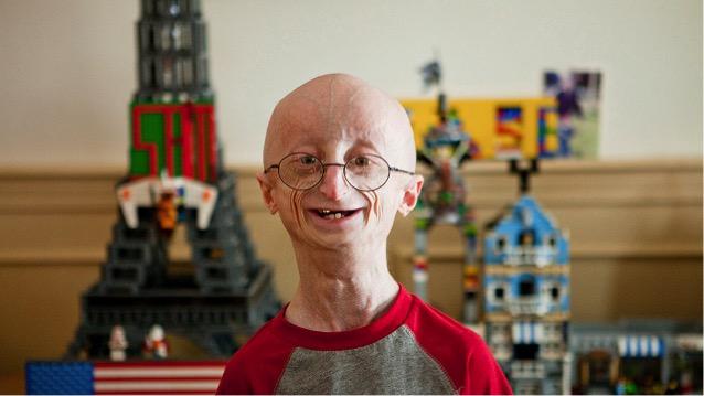 Les 10 mutations inhabituelles chez l'être humain Progeria