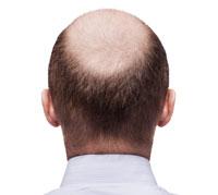 على الطريقة الصينية علاج تساقط الشعر 1613_secondary_359