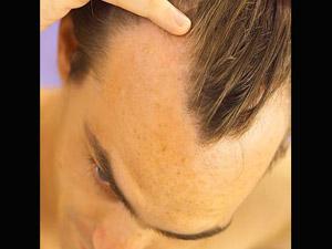 மன உளைச்சல் தரும் தலை வழுக்கை: எளிய சிகிச்சைமுறை 26-baldness4-300