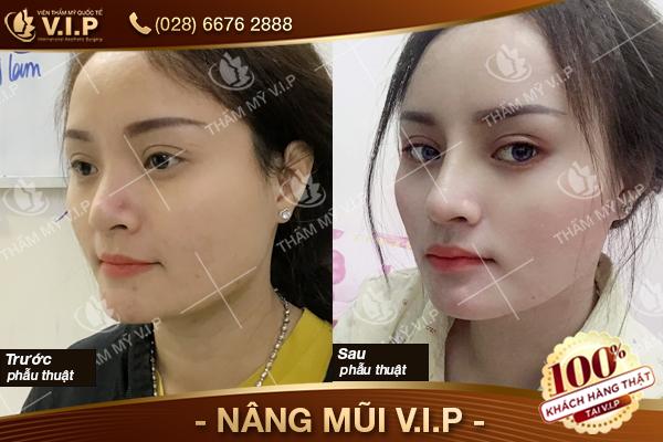 Nâng mũi được bao nhiêu năm cần phải nâng lại không Khach-hang--NANG-MUI-s-line-VIP