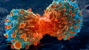 Can Baking Soda Be Used To Cure Cancer? Cancer670-300x170