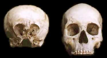 These Ancient Elongated Skulls Are NOT HUMAN Starchild-Skull-2014