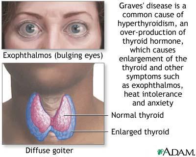 For Internal medicine clinical exam. Graves-disease
