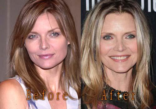 Golfos/nuevo tema - Página 7 Michelle-Pfeiffer-Plastic-Surgery-Picture