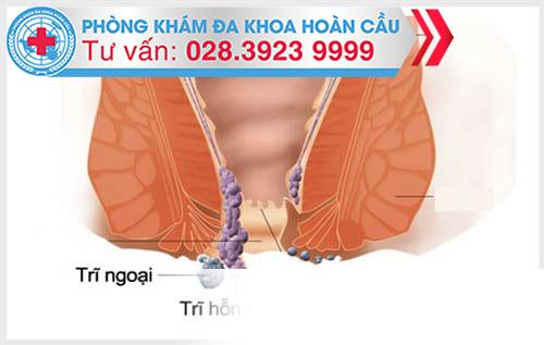 Hội chứng kích thích ruột liên quan thế nào đến bệnh trĩ Benh-tri-hon-hop(1)