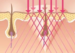 Hà Nội - Có cần thiết phải bảo hành sau khi triệt lông vĩnh viễn Triet-long-tay-a2-300x213