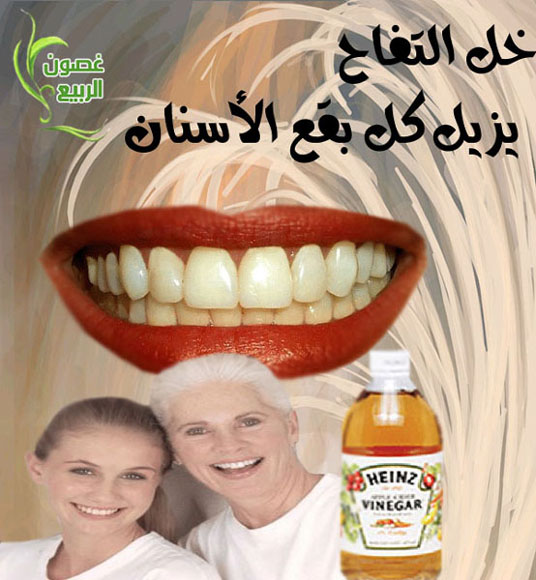 وصفات لأسنان بيضاء مثل اللولو 64470