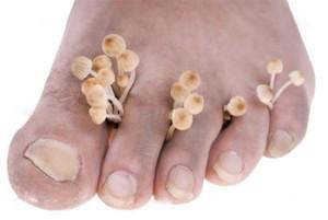 Gljivice na noktima Gribok-nogtej-300x201