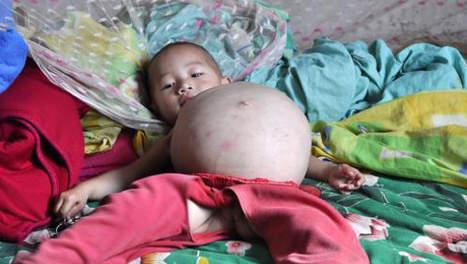 Insolite : Un bébé chinois naît avec son jumeau dans le ventre 1253109108