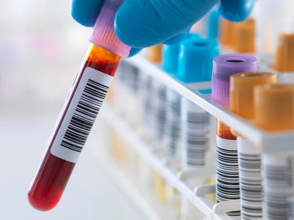 Tổng hợp xét nghiệm cần thiết khi khám sức khỏe tổng quát Nintchdbpict000290162661