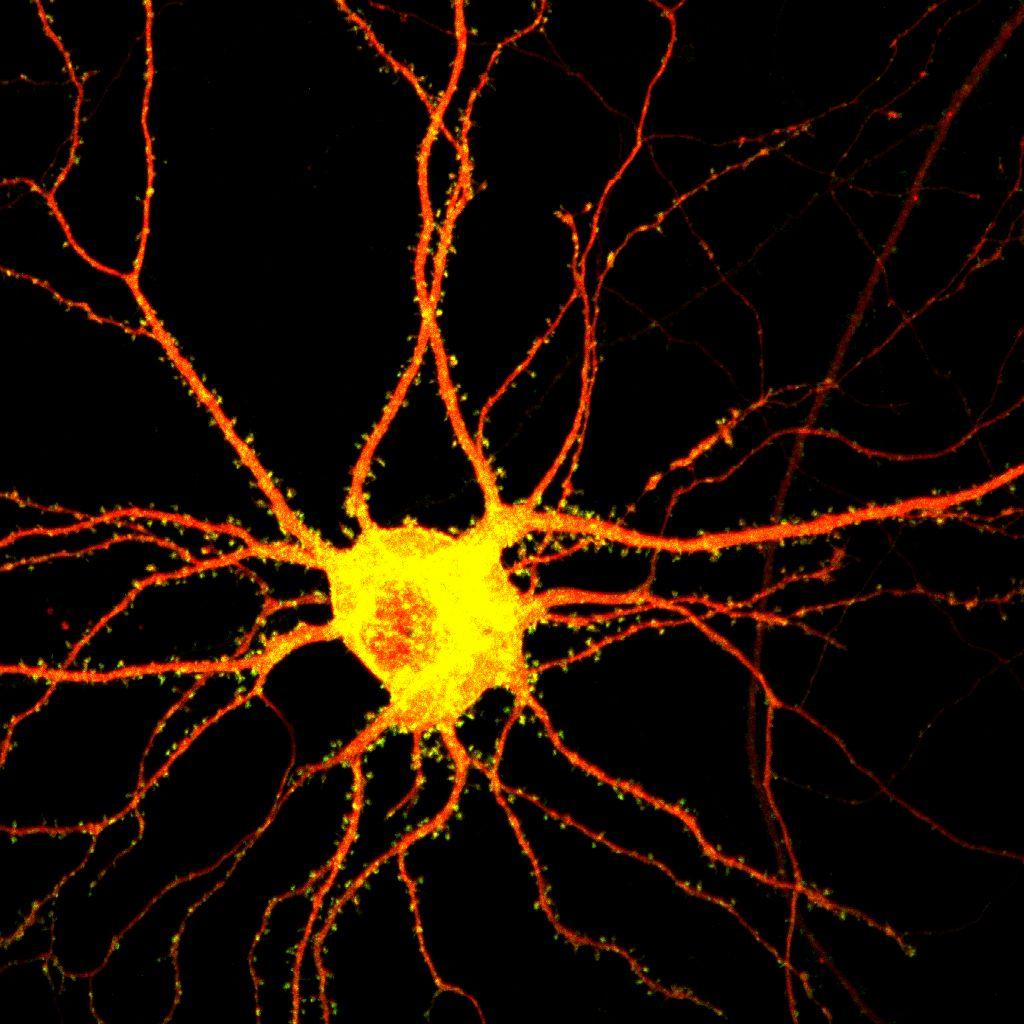 Study Identifies First Brain Cells that Respond to Sound D9
