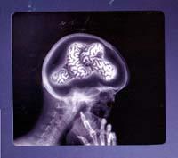 Viver de Musica I_brain_knot