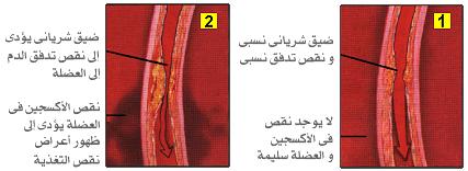 مخاطر ارتفاع نسبة الكوليسترول وطرق تخفيضه والوقايه منه N_016a