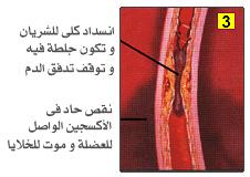 مخاطر ارتفاع نسبة الكوليسترول وطرق تخفيضه والوقايه منه N_016b