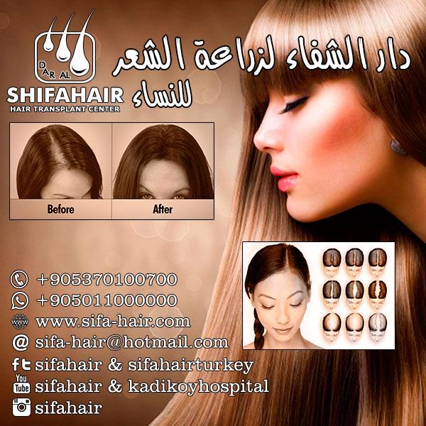 زراعة الشعر في تركيا للتواصل والحجز 00905370100700 1431677227