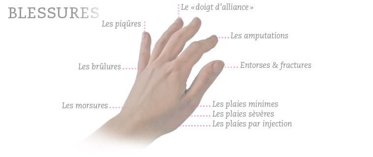 Clou rouillé...et arthrite septique Som_blessure