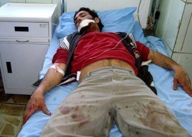 ثمانية شهداء في عملية انتحارية ضد قوات الامن في الرمادي Wonded_iraqi_man_in_suicide_explosion_1003009