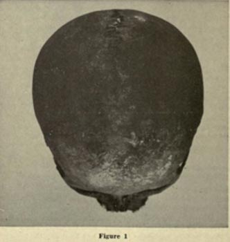 The Adena Giant Revealed: Profile of Prehistoric Mound Builders Brachycephalic-Red-Ocher-sk