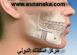 تقدم الأسنان العلوية من أكثر مشاكل الأسنان التقويمية ما هو الحل Orto_isran10