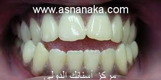 تقدم الأسنان العلوية من أكثر مشاكل الأسنان التقويمية ما هو الحل Orto_isran2
