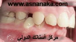 تقدم الأسنان العلوية من أكثر مشاكل الأسنان التقويمية ما هو الحل Orto_isran20