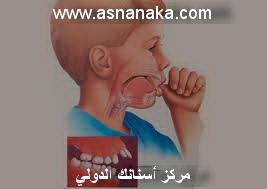 تقدم الأسنان العلوية من أكثر مشاكل الأسنان التقويمية ما هو الحل Orto_isran4
