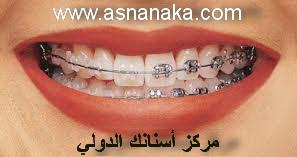 تقدم الأسنان العلوية من أكثر مشاكل الأسنان التقويمية ما هو الحل Orto_isran5