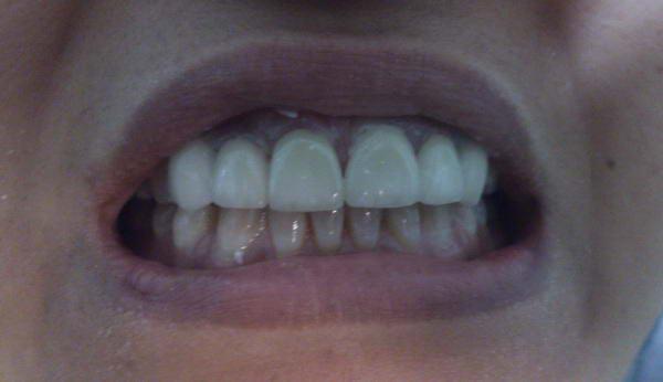 تقدم الأسنان العلوية من أكثر مشاكل الأسنان التقويمية ما هو الحل Orto_isran7