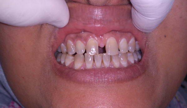 تقدم الأسنان العلوية من أكثر مشاكل الأسنان التقويمية ما هو الحل Orto_isran8