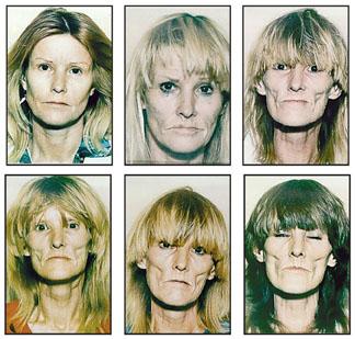 Efektet e droges Drugs-Before-and-After