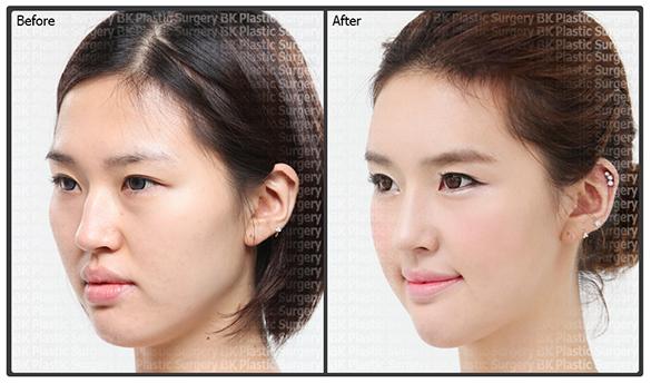 Звезды до и после Face_120401_01_2_s