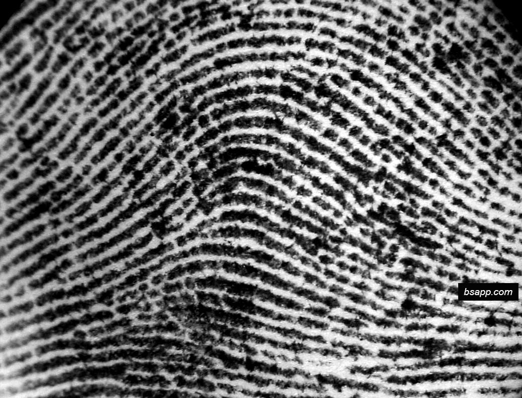 Psychological and diagnostic significance of finger prints DSC00827