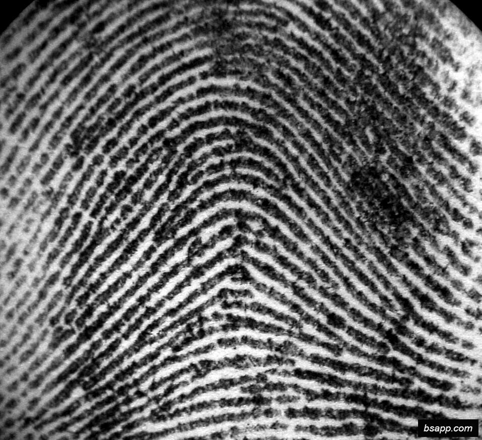 Psychological and diagnostic significance of finger prints DSC00828