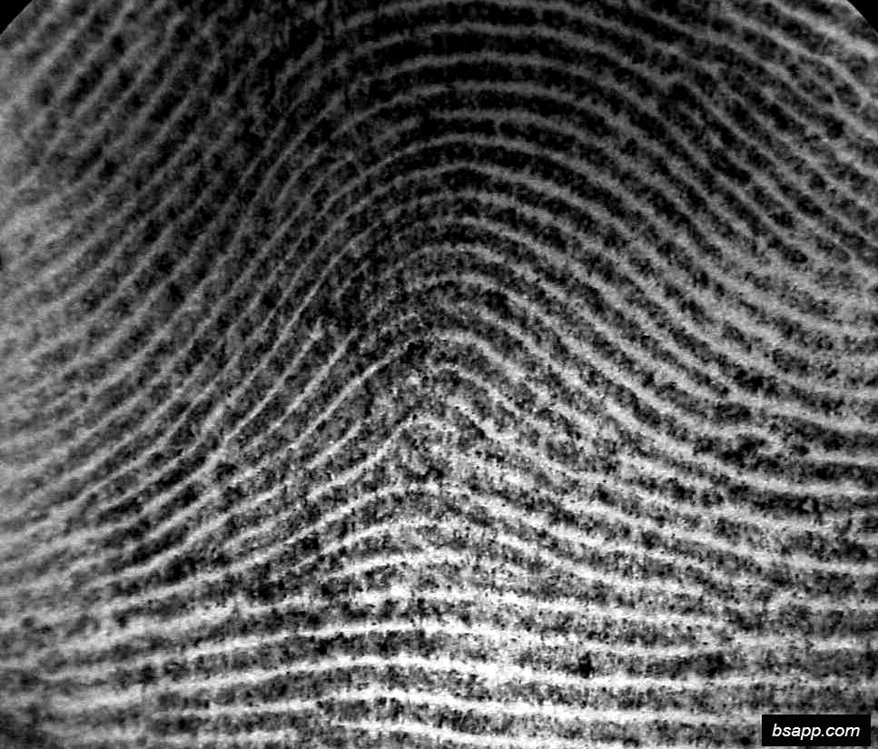 Psychological and diagnostic significance of finger prints DSC00922