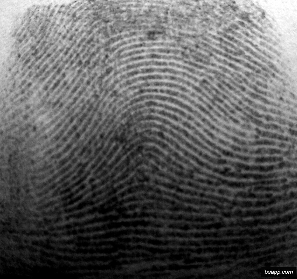 Psychological and diagnostic significance of finger prints DSC00923