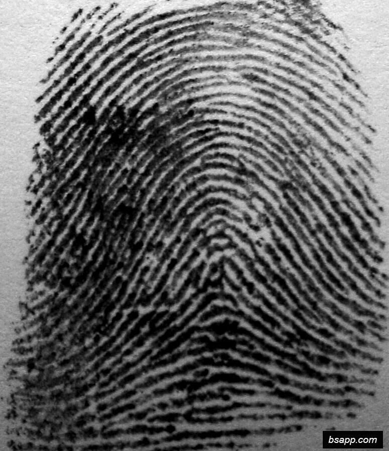Psychological and diagnostic significance of finger prints DSC00969