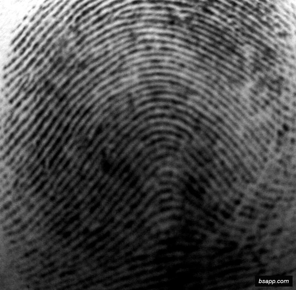 Psychological and diagnostic significance of finger prints DSC00985