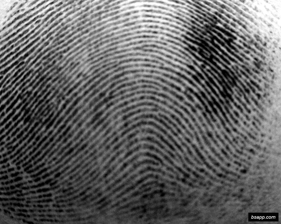 Psychological and diagnostic significance of finger prints DSC00988