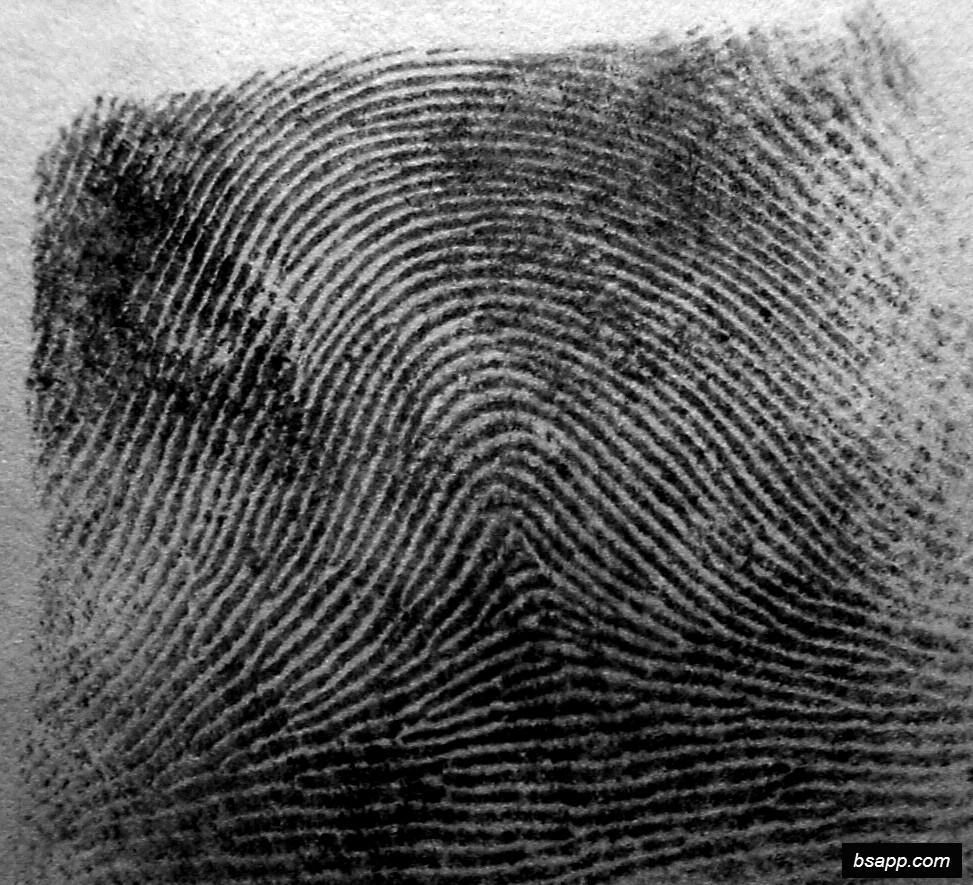 Psychological and diagnostic significance of finger prints DSC00996
