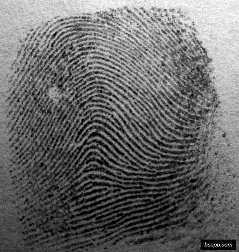 Psychological and diagnostic significance of finger prints DSC00947
