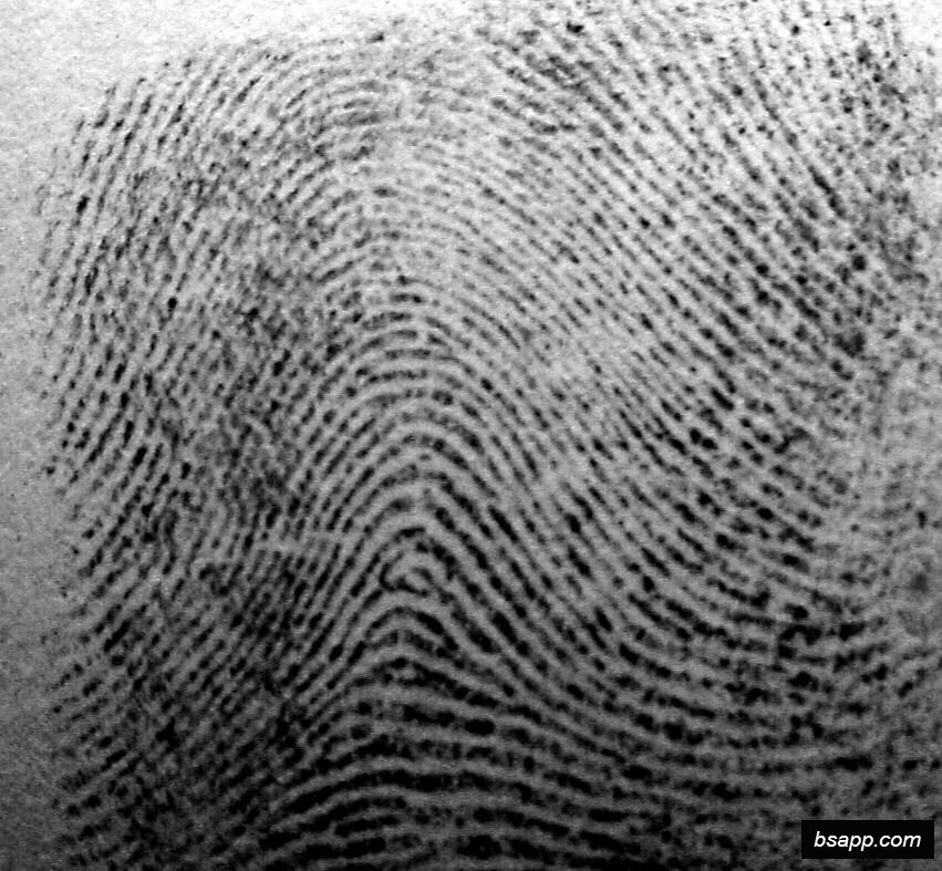 Psychological and diagnostic significance of finger prints DSC00948
