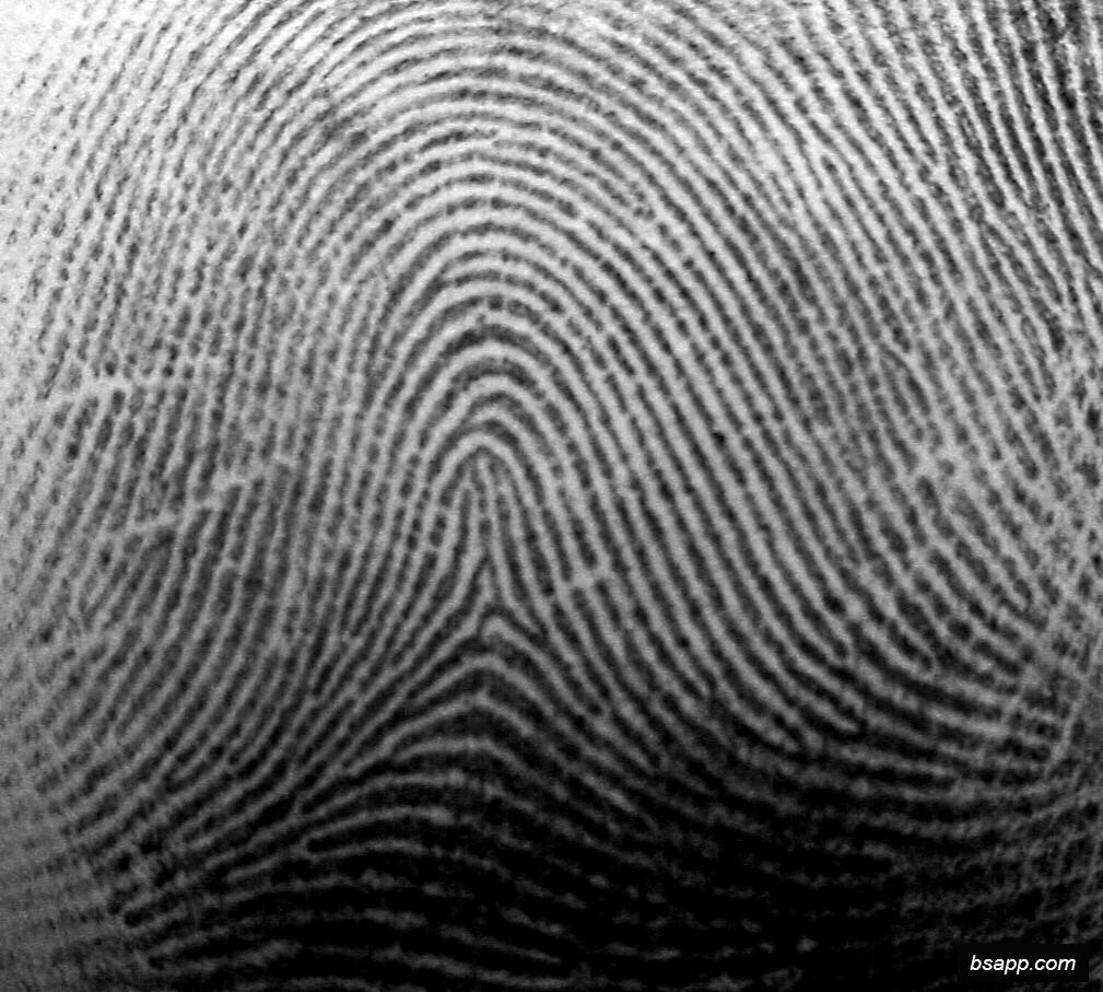 Psychological and diagnostic significance of finger prints DSC00961