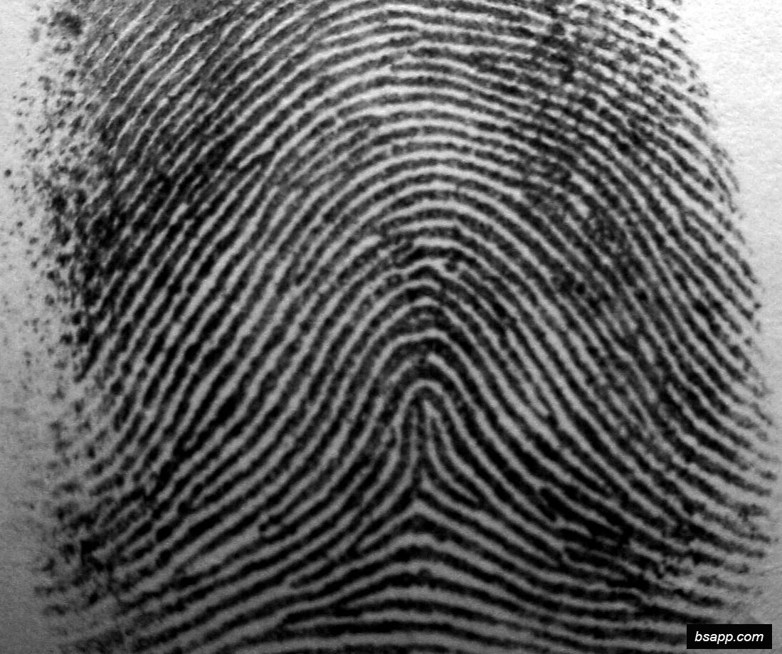 Psychological and diagnostic significance of finger prints DSC00972