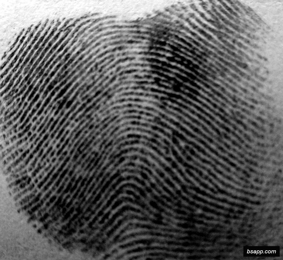 Psychological and diagnostic significance of finger prints DSC00989