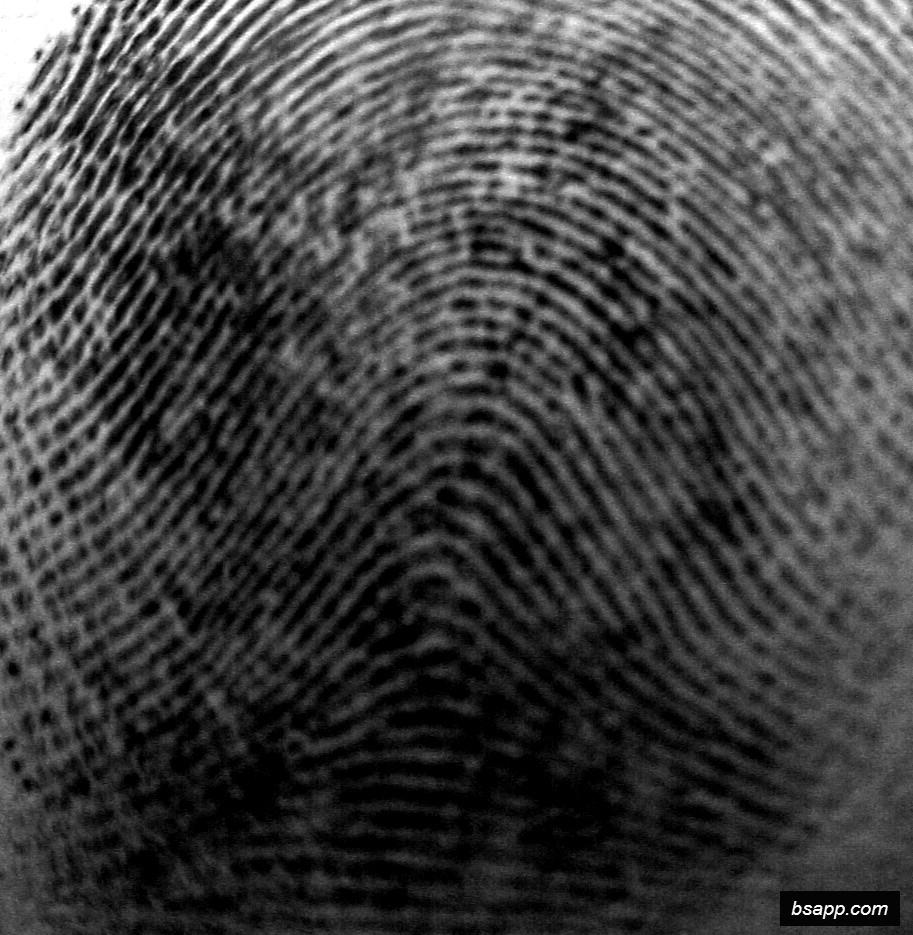 Psychological and diagnostic significance of finger prints DSC00990