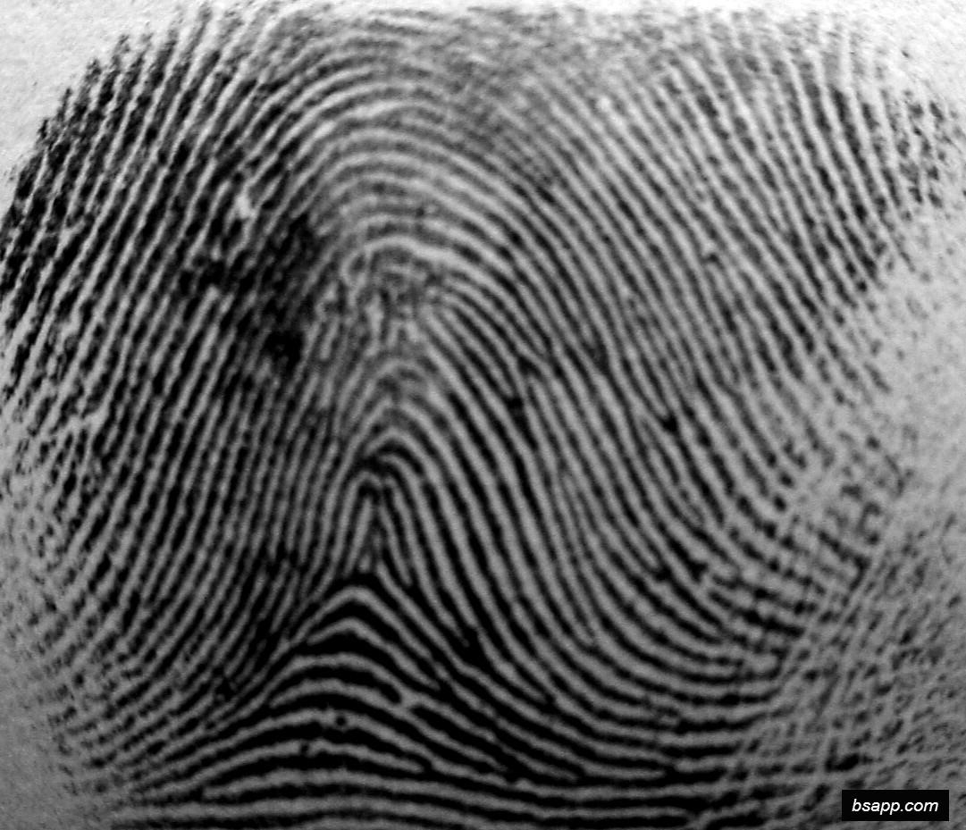 Psychological and diagnostic significance of finger prints DSC00993