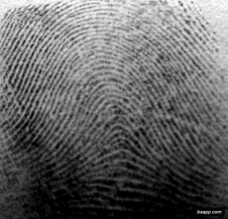 Psychological and diagnostic significance of finger prints DSC01002