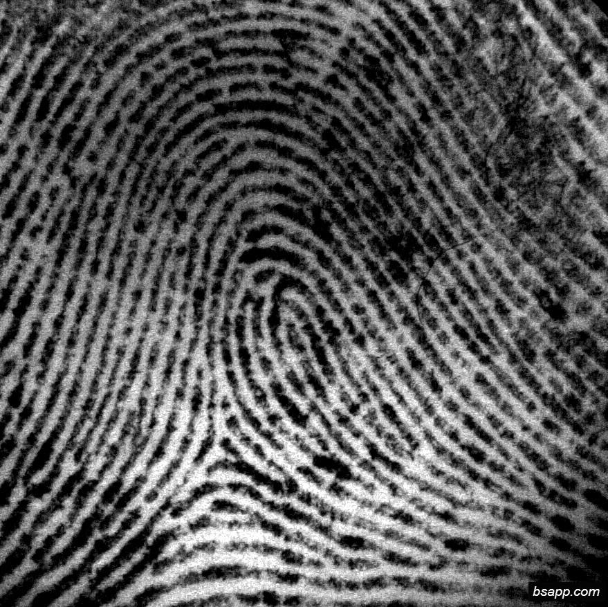 Psychological and diagnostic significance of finger prints DSC00805
