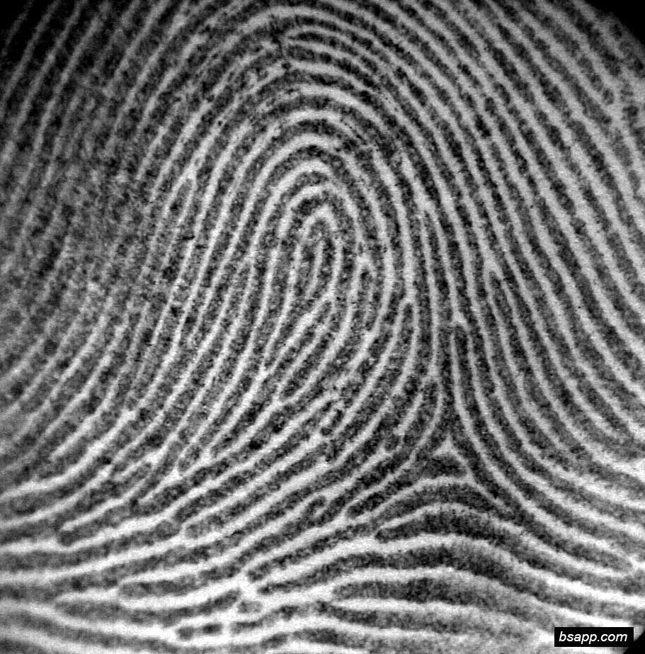 Psychological and diagnostic significance of finger prints DSC00825